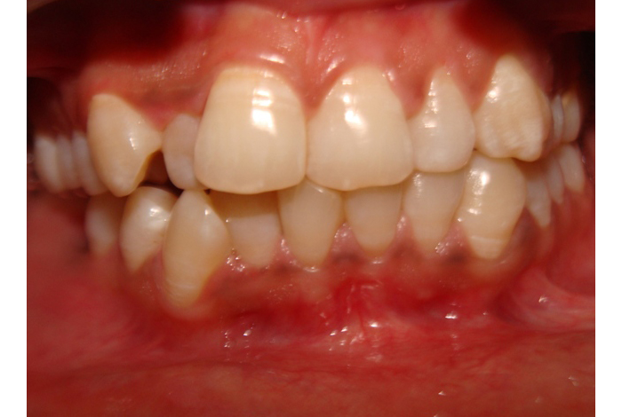 Malocclusion of Teeth - What to look for ?