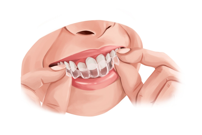 Retainers after Braces  - Types and Uses
